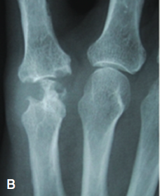 Arthritis of the Joints in the Finger Figure 1B