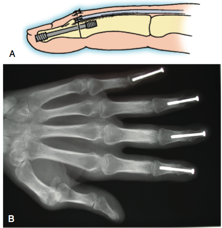Arthritis of the Joints in the Finger Figure 6
